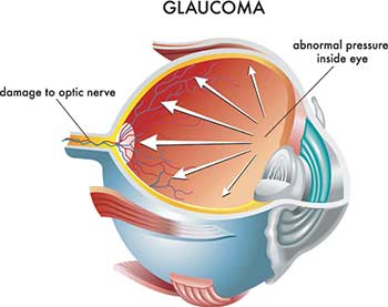 Glaucoma Treatment in Monterey